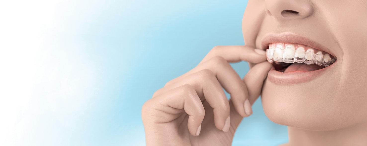 Soluzioni di Ortodonzia Invisibile | Studio Palombare